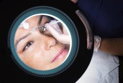 Eine Frau erhält eine Botox-Injektion